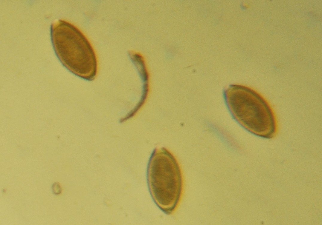 Parasitic Intestinal Worms Used as Treatment Therapy for Autistic Adults