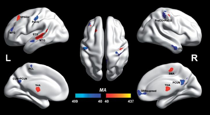 Press Release – Autistic and non-autistic brain differences isolated for first time